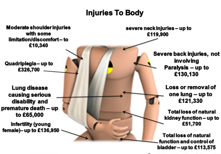 Injuries to Body Calculator