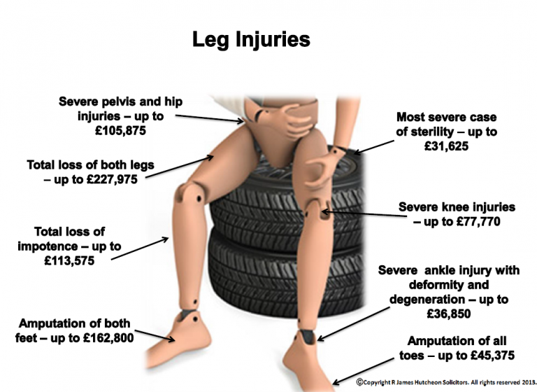 Leg Injuries Calculator